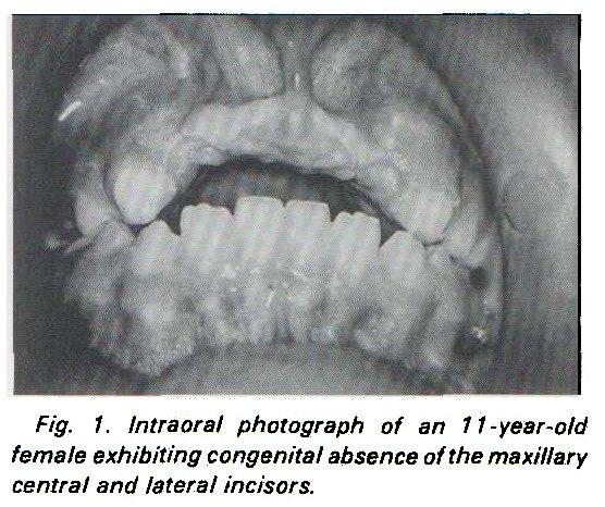 Fig. 1. Intraoral photograph of an 11 -year-old female exhibiting congenital absence of the maxillary central and lateral incisors.