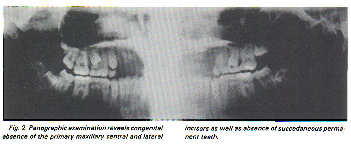 Fig. 2. Panographic examination reveals congenital absence of the primary maxillary central and lateral incisors as well as absence of succedaneous permanent teeth.