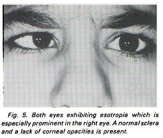 Fig. 5. Both eyes exhibiting esotropia which is especially prominent in the right eye. A normal sclera and a lack of corneal opacities is present.