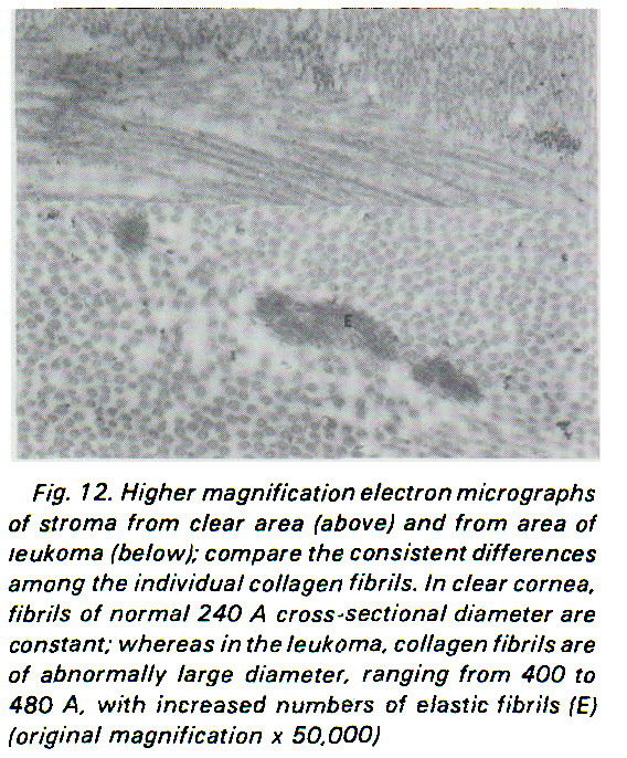 Fig. 12. Higher magnification electron micrographs of stroma from clear area (above) and from area of leukoma (below); compare the consistent differences among the individual collagen fibrils. In clear cornea, fibrils of normal 240 A cross-sectional diameter are constant; whereas in the leukoma, collagen fibrils are of abnormally large diameter, ranging from 400 to 480 A, with increased numbers of elastic fibrils (E) (original magnification x 50,000)
