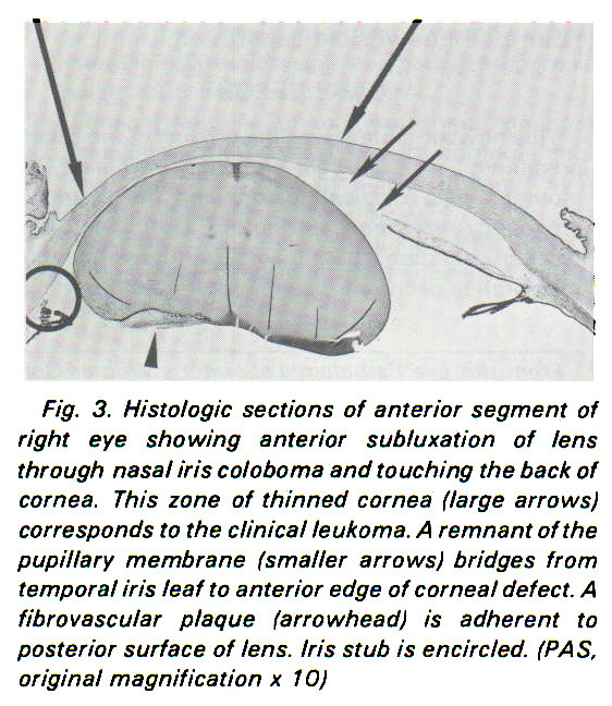Fig. 3. Histologic sections of anterior segment of right eye showing anterior subluxation of lens through nasal iris coloboma and touching the back of cornea. This zone of thinned cornea (large arrows) corresponds to the clinical leukoma. A remnant of the pupillary membrane (smaller arrows) bridges from temporal iris leaf to anterior edge of corneal defect. A fibrovascular plaque (arrowhead) is adherent to posterior surface of lens. Iris stub is encircled. (PAS. original magnification x 10)