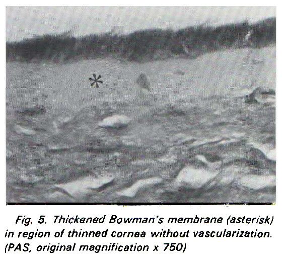 Fig. 5. Thickened Bowman's membrane (asterisk) in region of thinned cornea without vascularization. (PAS, original magnification x 750)