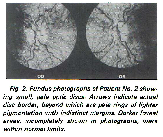 Fig. 2. Fundus photographs of Patient No. 2 showing small, pale optic discs. Arrows indicate actual disc border, beyond which are pale rings of lighter pigmentation with indistinct margins. Darker foveaf areas, incompletely shown in photographs, were within normal limits.
