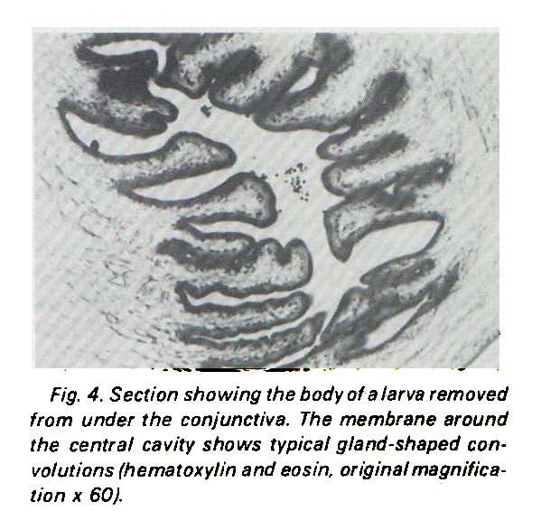 Fig. 4. Section showing the body of a larva removed from under the conjunctiva. The membrane around the central cavity shows typical gland-shaped convolutions (hematoxylin and eosin, original magnification x 60).