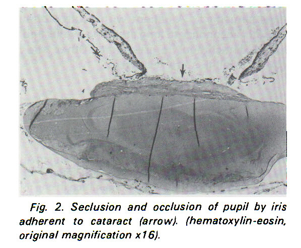 Fig. 2. Seclusion and occlusion of pupil by iris adherent to cataract (arrow), (hematoxylin -eosin. original magnification ? 16).