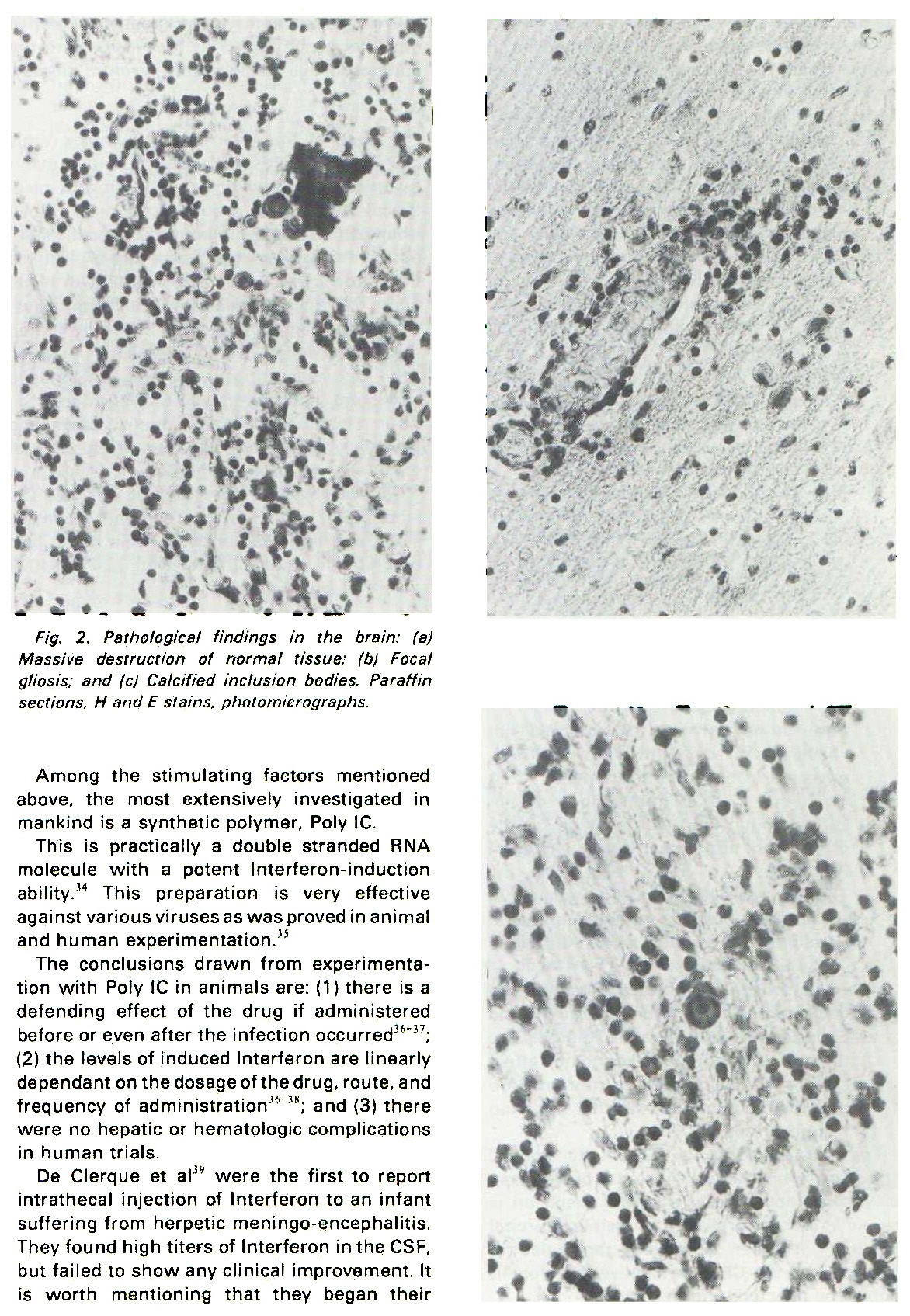 Fig. 2. Pathological findings in the brain: (a) Massive destruction of normal tissue: (b) Focal gliosis: and (c) Calcified inclusion bodies. Paraffin sections, H and E stains, photomicrographs.