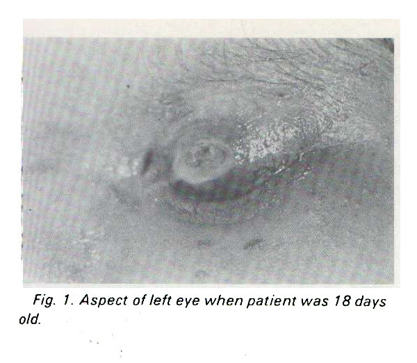 Fig. 1. Aspect of left eye when patient was 18 days old.