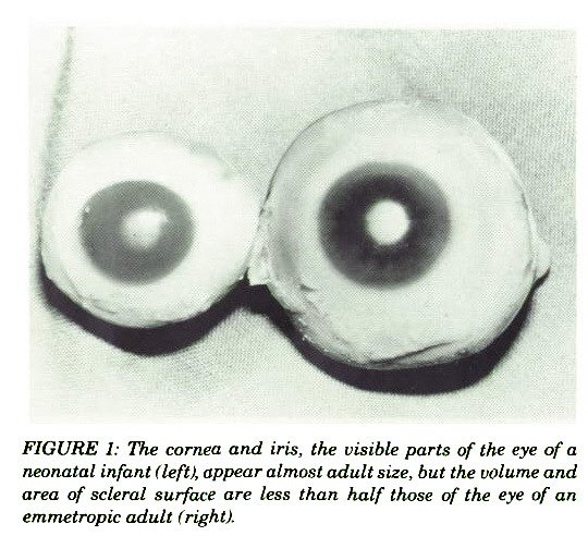 FIGURE 1: The cornea and iris, the visible parts of the eye of a neonatal infant (left), appear almost adult size, but the volume and area of scleral surface are less than half those of the eye of an emmetropic adult (right).