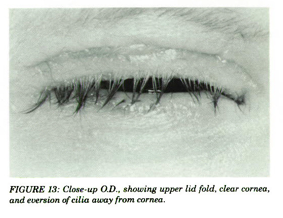 FIGURE 13: Close-up O.D., showing upper lid fold, clear cornea, and eversión of cilia away from cornea.