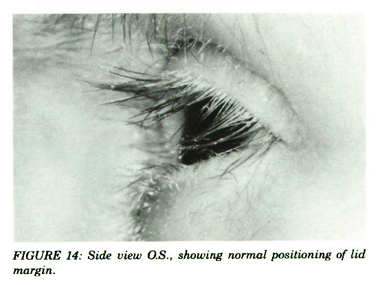 FIGURE 14: Side view O.S., showing normal positioning of id margin.