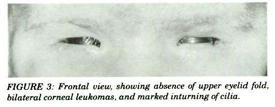 FIGURE 3: Frontal view, showing absence of upper eyelid fold, bilateral corneal leukomas, and marked inturning of cilia.