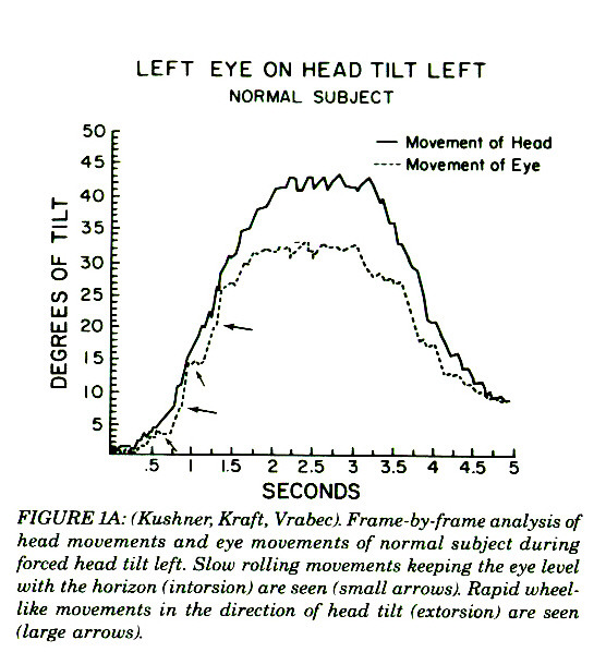 FIGURE IA: (Kushner, Kraft, Vrabecl Frante-by-frame analysis of head movements and eye movements of normal subject during forced head tilt left. Stow rolling movements keeping the eye level with the horizon iintorsion) are seen (small arrows). Rapid wheellike mouemenis in the direction of head tii£ (estorsioni are seen (large arrows).