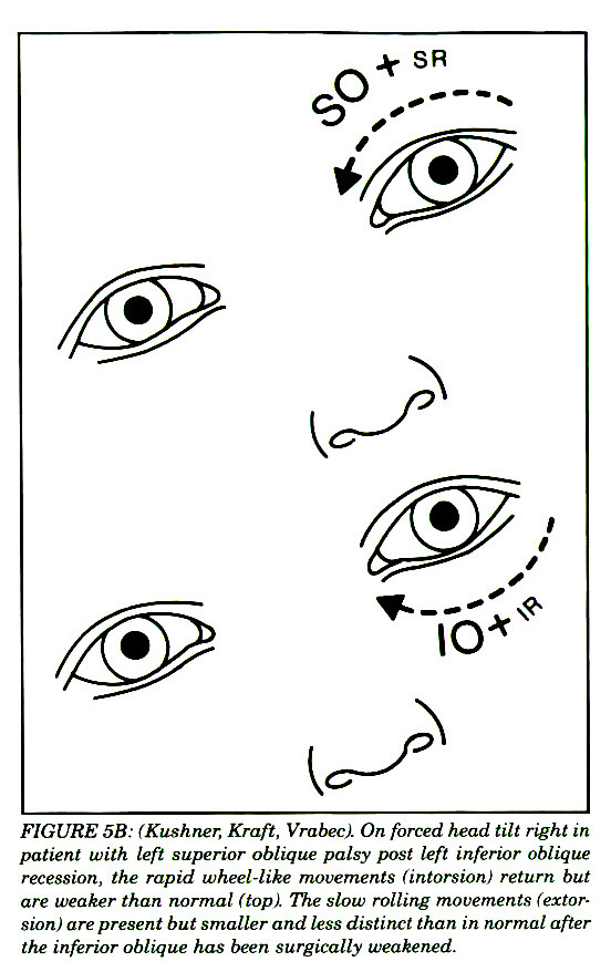FIGURE 5B: (Kushner, Kraft, Vrabec). On forced head tilt right in patient with left superior oblique palsy post left inferior oblique recession, the rapid wheel-like movements (intorsioni return but are weaker than normal (topi. The slow rolling movements (extorsion) are present but smaller and less distinct than in normal after the inferior oblique has been surgically weakened.