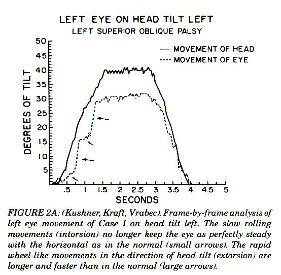 FIGURE 2A: (Kushner, Kraft, Vrabect. Frame-by-frame analysis of left eye movement of Case 1 on head tilt left. The slow rolling movements (intarsionl no longer keep the eye as perfectly steady with the horizontal as in the normal (small arrows!. The rapid wheel-like movements in the direction of head tilt (extorsion! are longer and faster than in the normal f large arrows/.