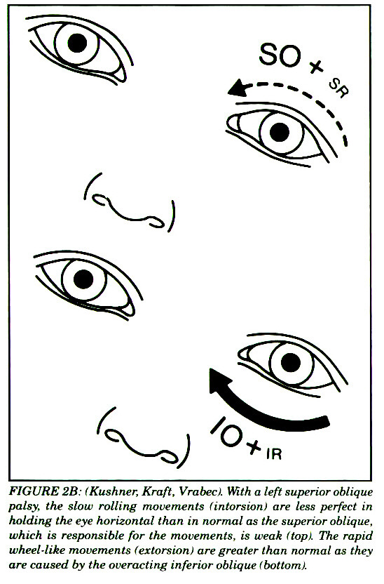 FIGURE 2B: IKushner, Kraft, Vrabect. ???? a left superior oblique palsy, the slow rolling movements fintorsion! are less perfect in holding the eye horizontal than in normal as the superior oblique, which is responsible for the movements, is weak (topi. The rapid wheel-like movements (estorsioni are greater than normal as they are caused by the overacting inferior oblique !bottom}.