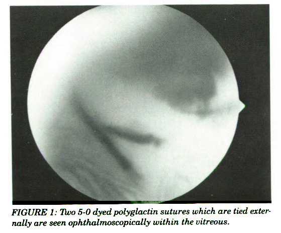 FIGURE 1: Tino 5-0 dyed polyglactin sutures which are tied externally are seen ophthalmoscopically within the vitreous.