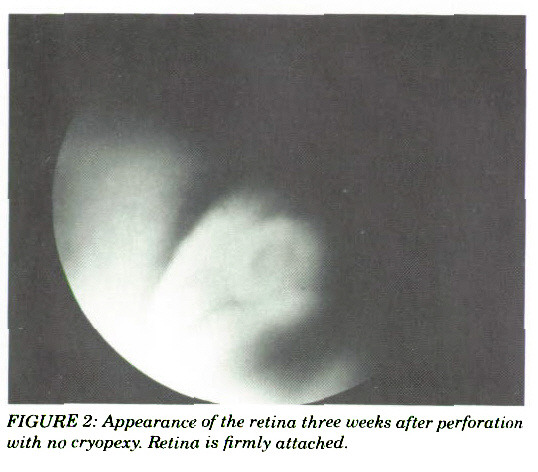 FIGURE 2: Appearance of the retina three weeks after perforation with no fryopexy. Retina is firmly attached.