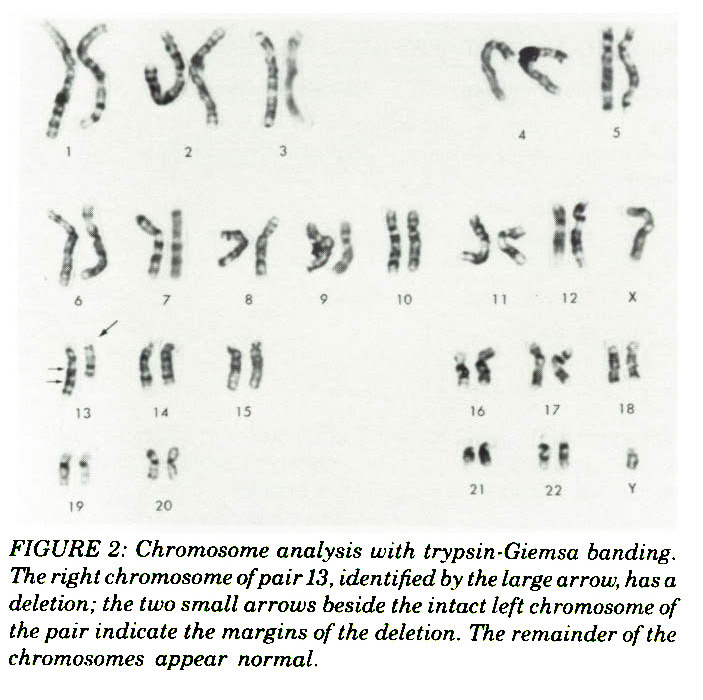 FIGURE 2: Chromosome analysis with trypsin-Giemsa banding. The right chromosome of pair 13, identified by the large arrow, has a deletion; the two small arrows beside the intact left chromosome of the pair indicate the margins of the deletion. The remainder of the chromosomes appear normal.