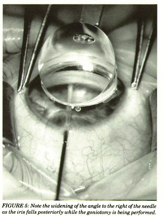 FIGURE 5: Note the widening of the angle to the right of the needle as the iris falls posteriorly while the goniotomy is being performed.