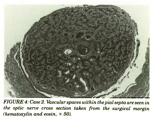 FIGURE 4: Case 2. Vascular spaces within the pial septa are seen in the optic nerve cross section taken from the surgical margin (hematoxylin and eosin, x 50).