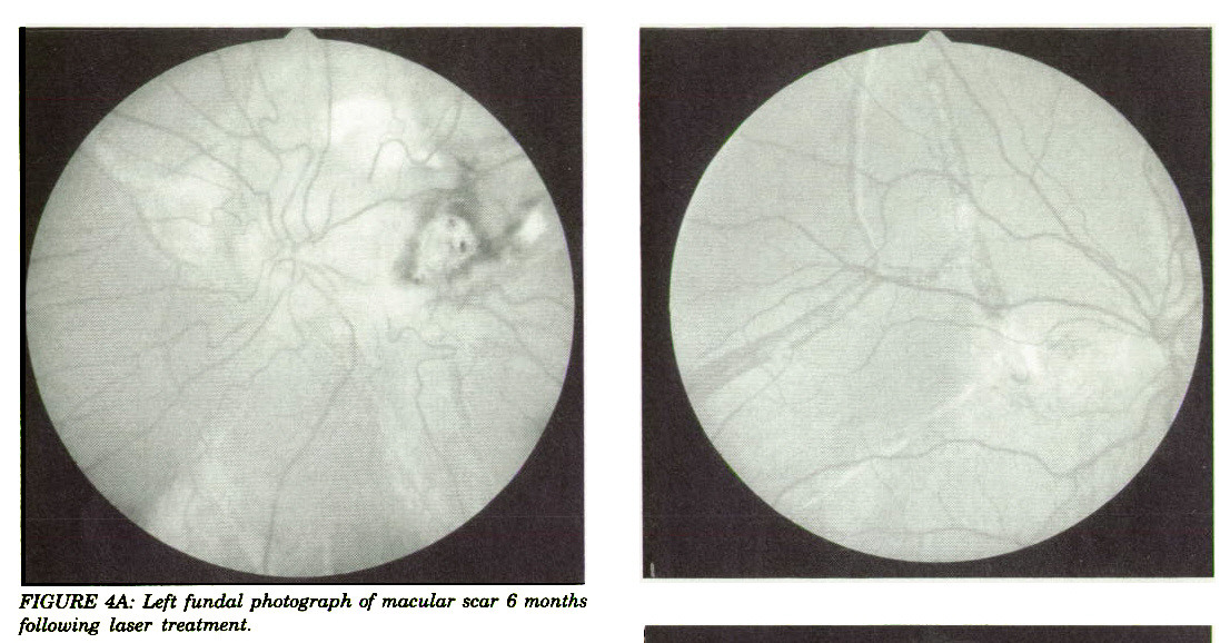 FIGURE 4A: Left fundal photograph of macular scar 6 months following laser treatment.