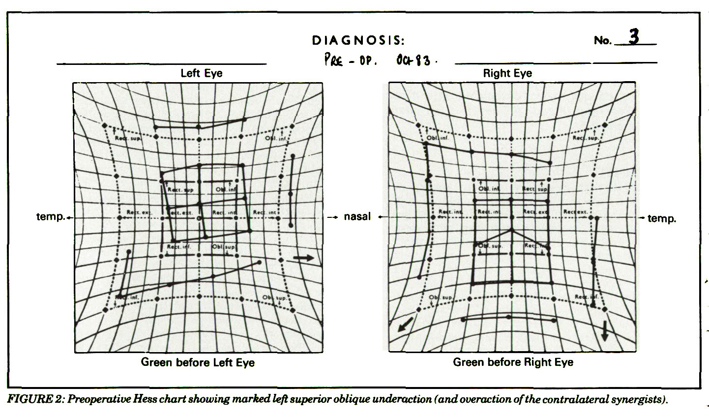FIGURE 2: Preoperative Hess chart showing marked left superior oblique underaction (and overaction of the contralateral synergists).