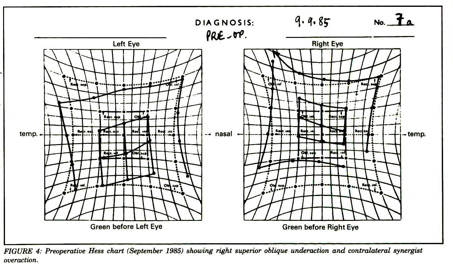 FIGURE 4: Preoperative Hess chart (September 1985) showing right superior oblique underaction and contralateral synergist overaction.