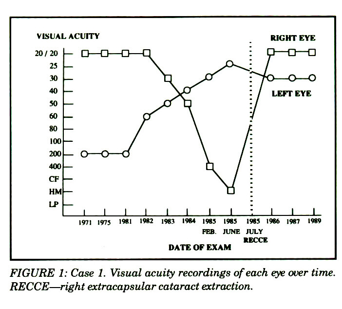 FIGURE 1: Case 1. Visual acuity recordings of each eye over time. RECCE ~ right extracapsular cataract extraction.
