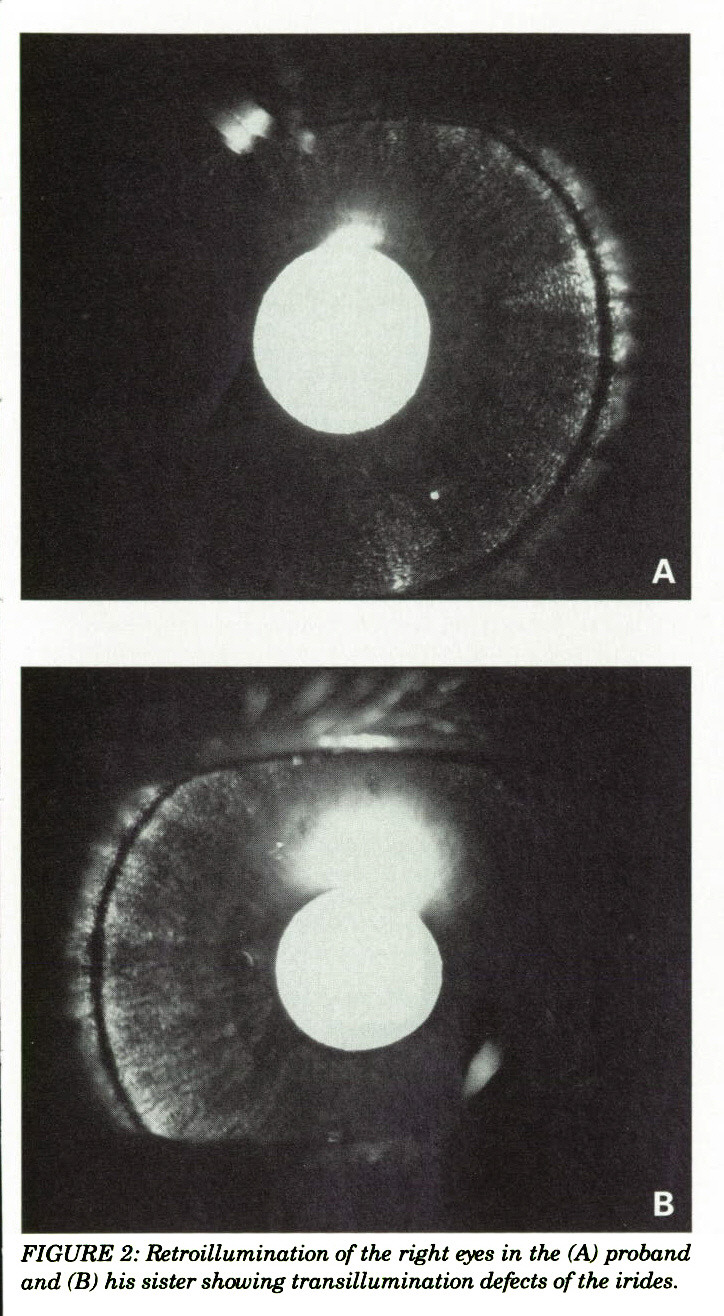 FIGURE 2: Retroillumination of the right eyes in the (A) proband and (B) his sister showing transillumination defects of the irides.