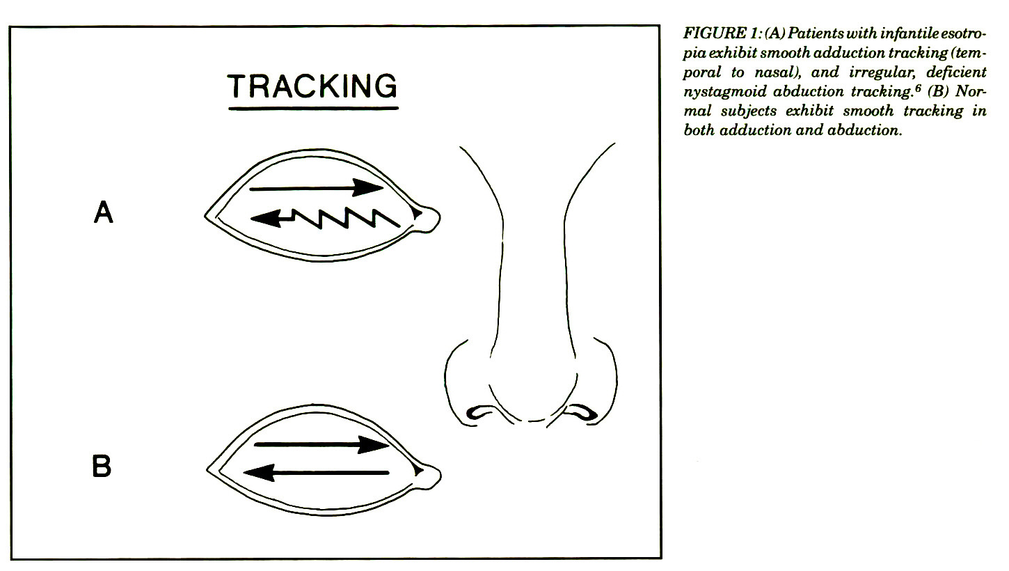 FIGURE 1: (A) Patients with infantile esotropia exhibit smooth adduction tracking (temporal to nasal), and irregular, deficient nystagmoid abduction tracking.6 (B) Normal subjects exhibit smooth tracking in both adduction and abduction.