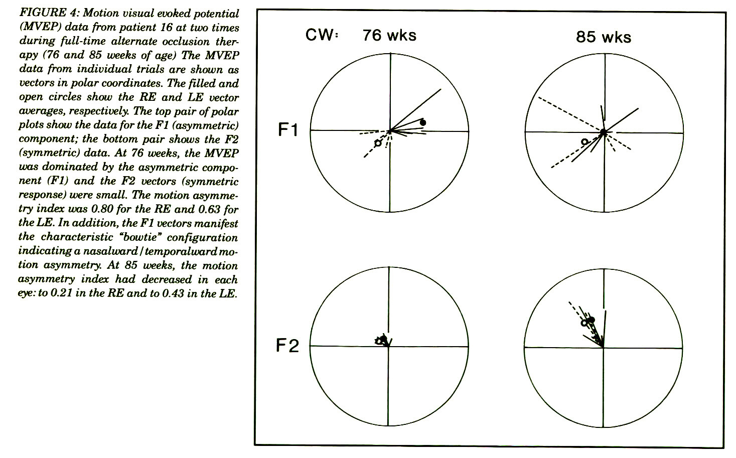 "FIGURE 4: Motion visual evoked potential (MVEP) data from patient 16 at two times during full-time alternate occlusion therapy (76 and 85 weeks of age) The MVEP data from individual trials are shown as vectors in polar coordinates. The filled and open circles show the RE and LE vector averages, respectively. The top pair of polar plots show the data for the Fl (asymmetric) component; the bottom pair shows the F2 (symmetric) data. At 76 weeks, the MVEP was dominated by the asymmetric component (Fl) and the F2 vectors (symmetric response) were small. The motion asymmetry index was 0.80 for the RE and 0.63 for the LE. In addition, the Fl vectors manifest the characteristic ""bowtie"" configuration indicating a nasalward I temporalward motion asymmetry. At 85 weeks, the motion asymmetry index had decreased in each eye: to 0.21 in the RE and to 0.43 in the LE."