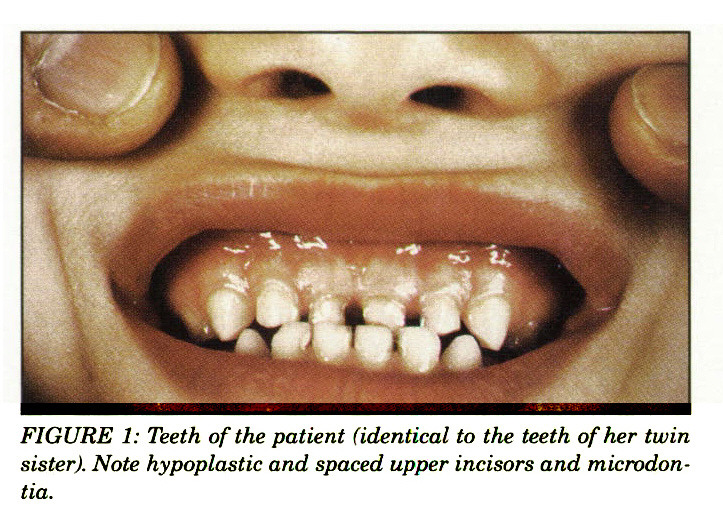 FIGURE 1: Teeth of the patient (identical to the teeth of her twin sister). Note hypoplastic and spaced upper incisors and microdontia.