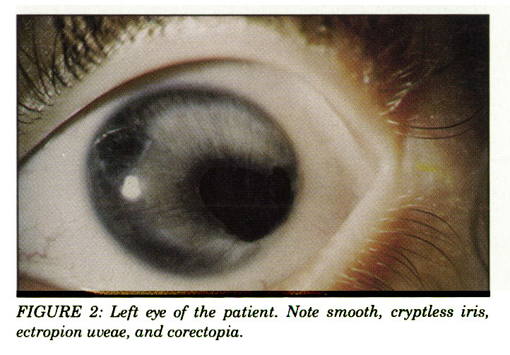 FIGURE 2: Left eye of the patient. Note smooth, cryptless iris, ectropion uveae, and corectopia.