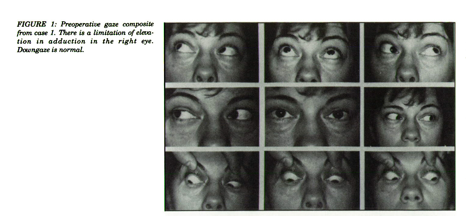 FIGURE 1: Preoperative gaze composite from case 1, There is a limitation of elevation in adduction in the right eye. Downgaze is normal.