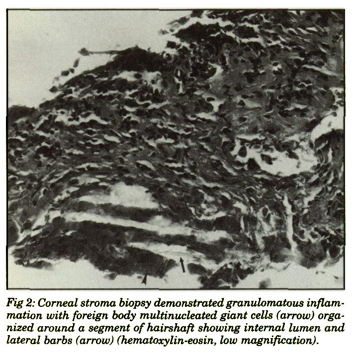 Fig 2: Corneal stroma biopsy demonstrated granulomatous inflammation with foreign body multinucleated giant cells (arrow) organized around a segment of hairshaft showing internal lumen and lateral barbs (arrow) (hematoxylin-eosin, low magnification).