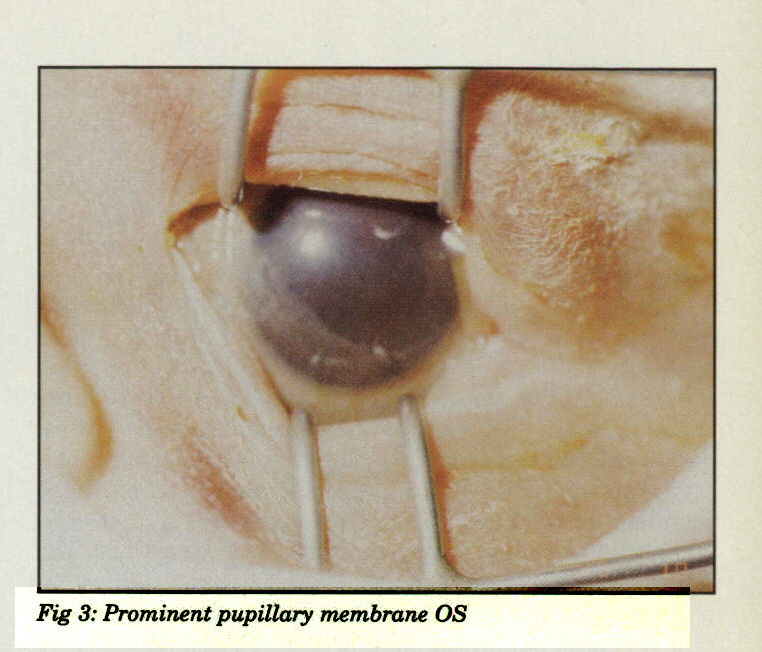 Fig 3: Prominent pupillary membrane OS