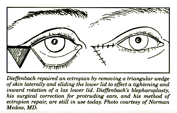 Dieffenbach repaired an ectropion by removing a triangular wedge of skin laterally and sliding the lower lid to effect a tightening and inward rotation of a lax lower Ud. Dieffenbach's blepharoplasty, his surgical correction for protruding ears, and his method of ectropion repair, are still in use today. Photo courtesy of Norman Medow, MD.