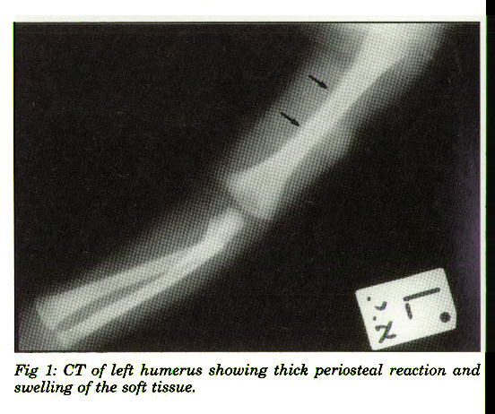 Fig 1: CT of left humerus showing thick periosteal reaction and \ swelling of the soft tissue.