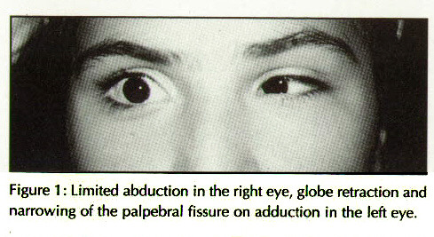 Figure 1: Lrmiled abduction in the right eye, globe retraction and narrowing of the palpebrai fissure on adduction in the left eye,