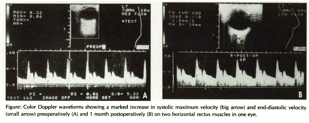 Figure: Color Doppler waveforms showing a marked increase in systolic maximum velocity (big arrow) and end-diastolic velocity (small arrow) preoperatively (A) and 1 month postoperatively (B) on two horizontal rectus muscles in one eye.