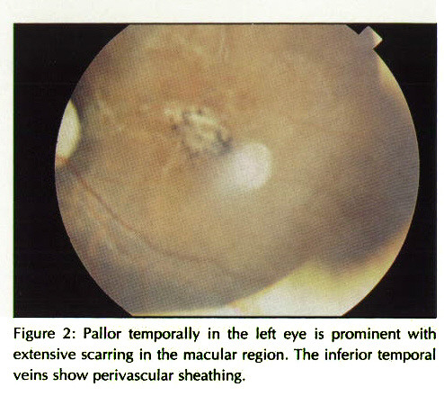 Figure 2: Pallor temporally in the left eye is prominent with extensive scarring in the macular region. The inferior temporal veins show perivascular sheathing.