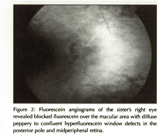 Figure 2: Fluorescein angiograms of the sister's right eye revealed blocked fluorescein over the macular area with diffuse peppery to confluent hyperfluorescein window defects in the posterior pole and midperipheral retina.