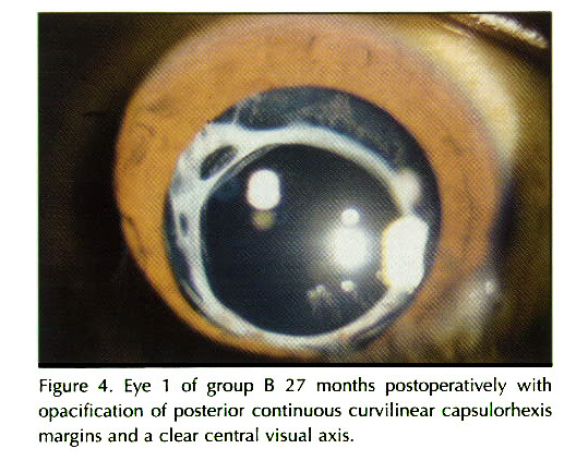 Figure 4. Eye 1 of group B 27 months postoperative I y with opacification of posterior continuous curvilinear capsulorhexis margins and a clear central visual axis.