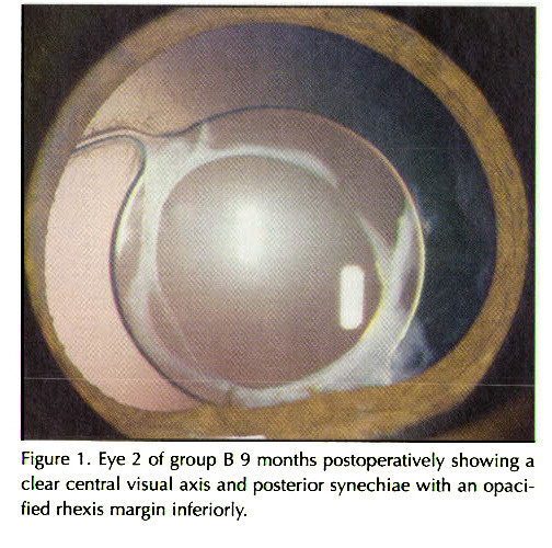 Figure 1 . Eye 2 of group B 9 months postopera t i ve Iy showing a clear central visual axis and posterior synechiae with an opacified rhexis margin inferiody.
