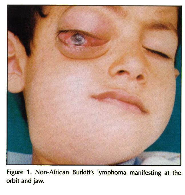 Figure 1. Non-African Burkitt's lymphoma manifesting at the omit and jaw.