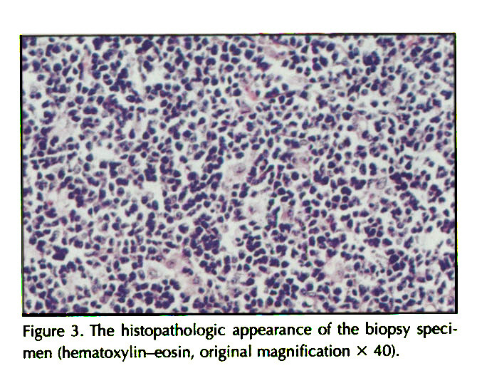 Figure 3. The histopathologic appearance of the biopsy specimen (hematoxylin-eosin, original magnification X 40).