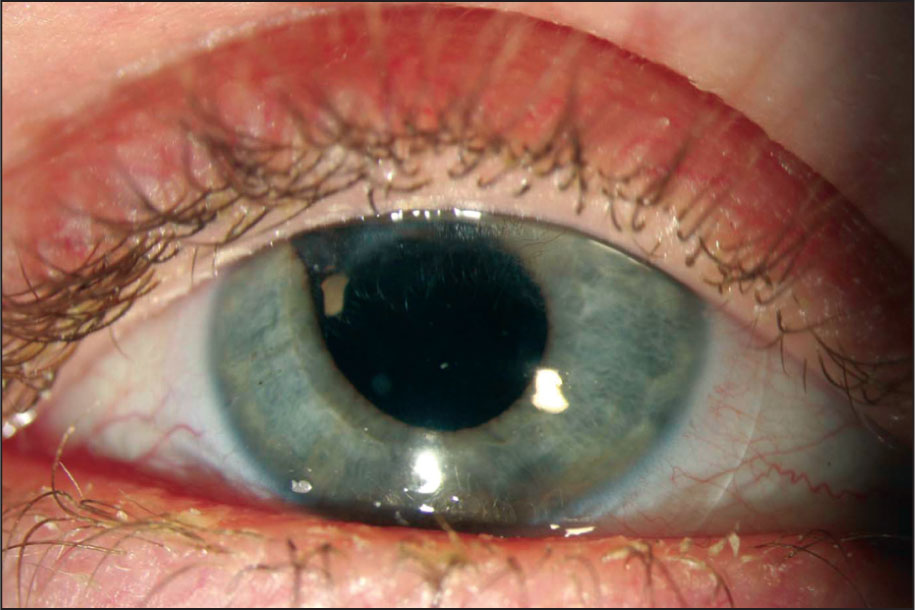 Corneal Vascularization and Scarring Reasonably Controlled by Long-Term Bandage Contact Lens Use.