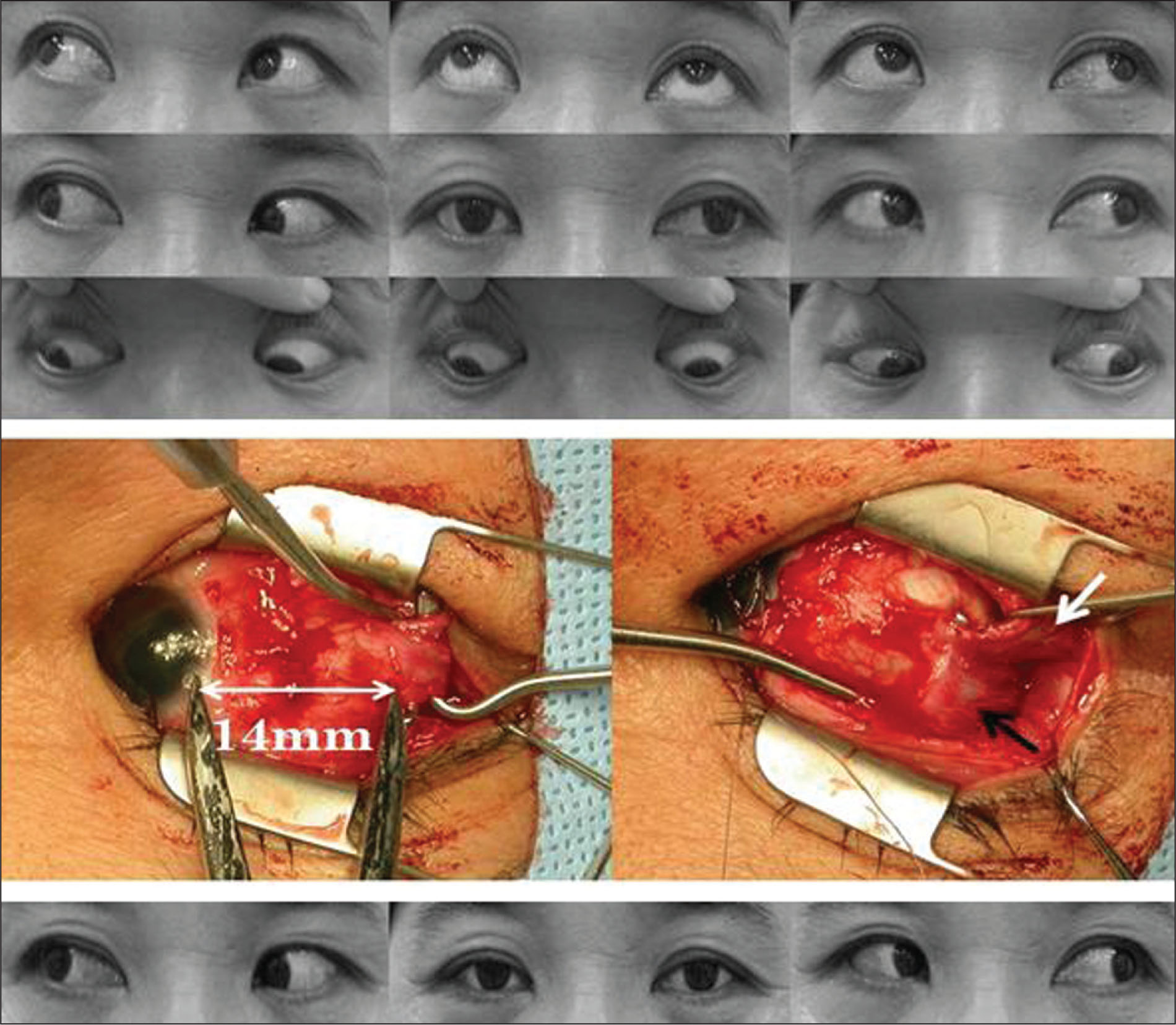 (Top) There Was Manifest Exotropia in the Primary Position in the Left Eye and Mild Limitation of Adduction in the Right Eye. (Middle) Note the Abnormal Adhesion Between the Right Lateral Rectus (black Arrow) and Inferior Oblique (white Arrow) Muscles. (bottom) Six Weeks After Surgery, 10 Prism Diopters Exophoria Was Achieved and the Adduction of the Right Eye Was Improved.