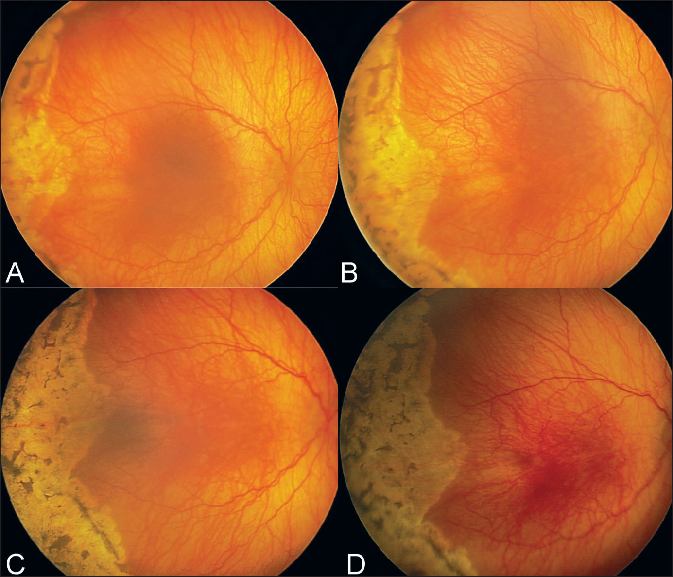 A 26-Week-Old Premature Infant with a Neovascular Ridge in an Area of Previous Laser Treatment. (A) Pretreatment Photograph Showing Posterior Zone 2 Disease Associated with plus Disease. (B) Four Days After Injection. (C) Three Weeks After Injection. (D) Four Weeks After Treatment. There Is Resolution of Disease.