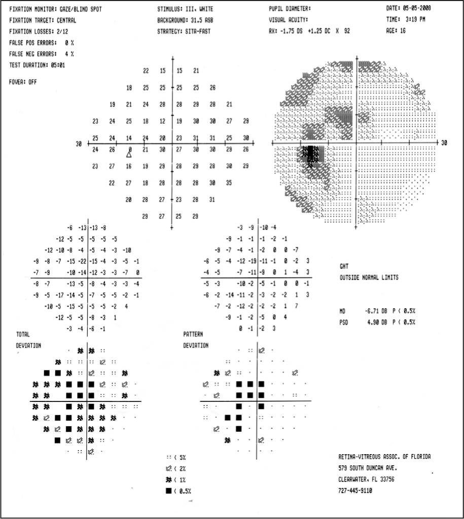 Humphrey Visual Field Examination of the Left Eye Showing Enlargement of the Blind Spot with Scotoma that Touches Fixation.